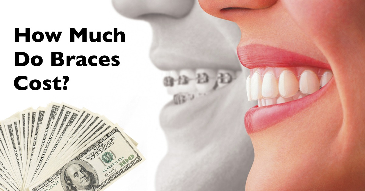 How much do braces cost? | How expensive is orthodontics? | Cost of Braces in Memphis, TN