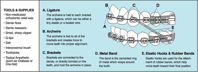 braces parts diagram
