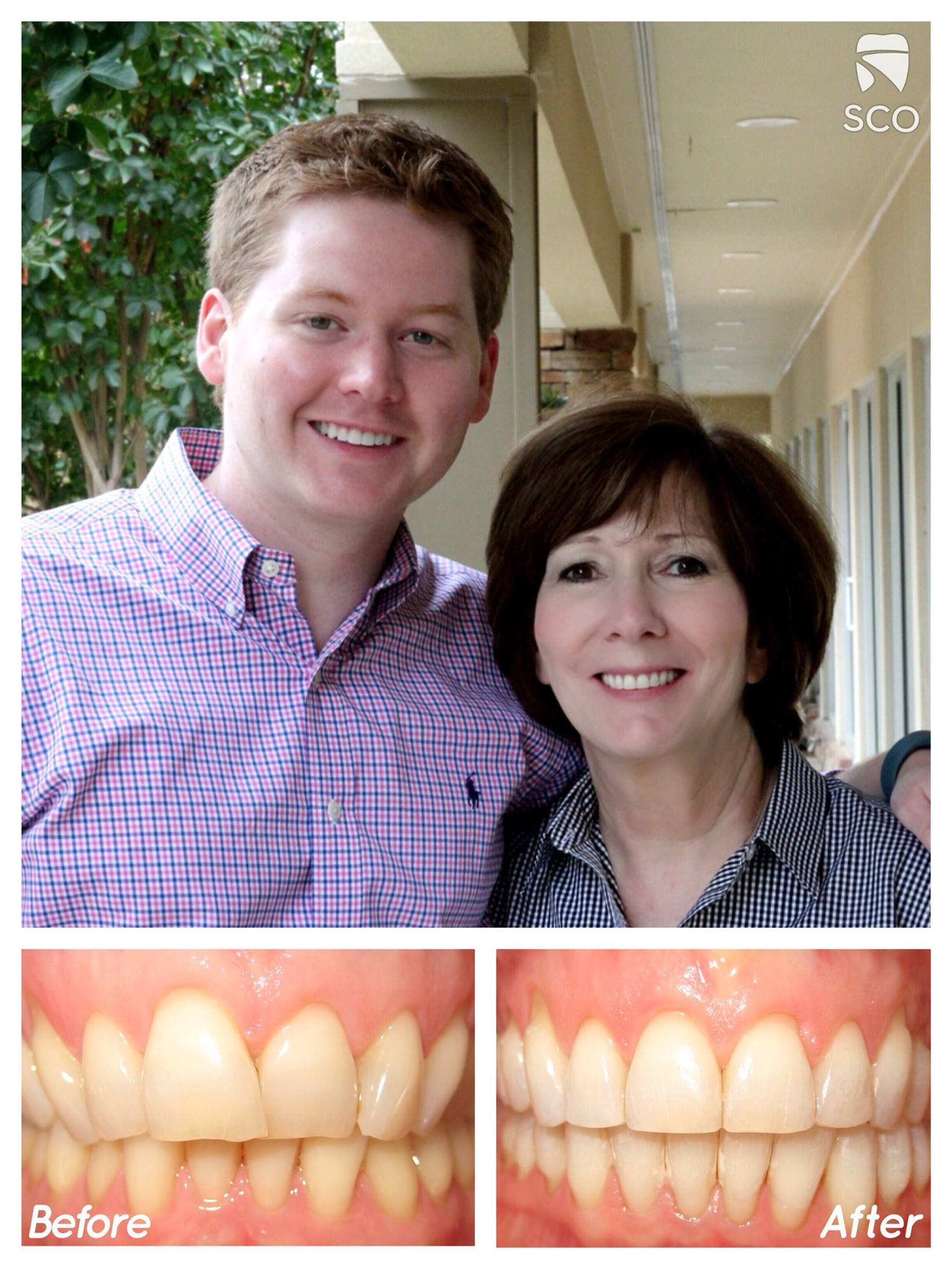 adult braces before and after | memphis orthodontist | Dr. Kyle Fagala