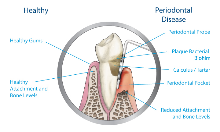 Periodontal Disease | Saddle Creek Orthodontics