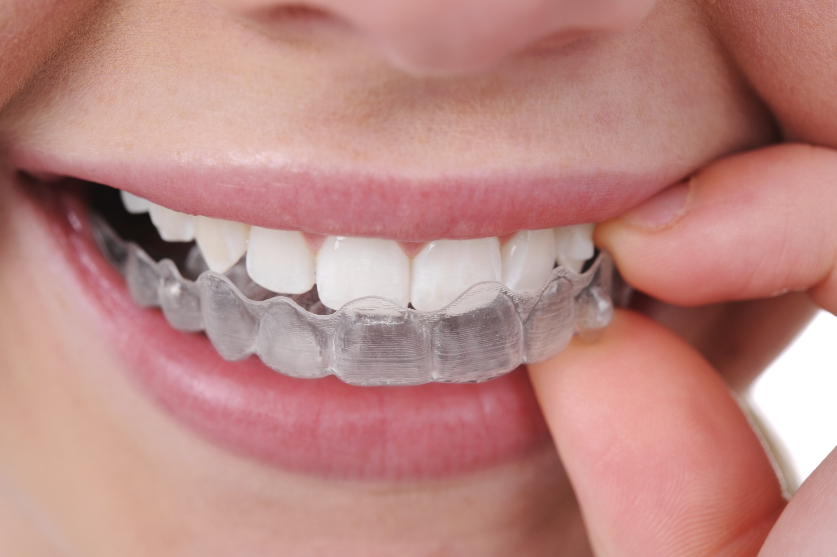 Memphis Invisalign | Saddle Creek Orthodontics | Invisalign Memphis