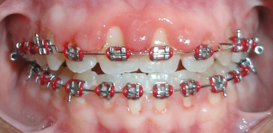 Swollen Gums And Braces Are They Related Dr Kyle Fagala