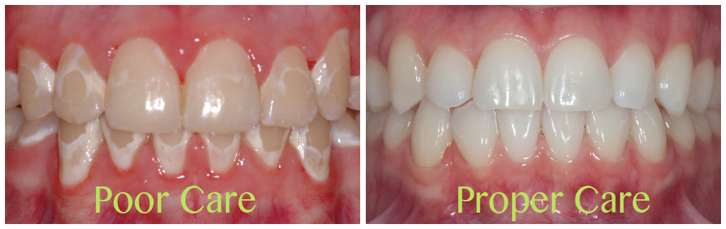 Do Orthodontic Braces Cause White Spots on Teeth? | Dr  Kyle