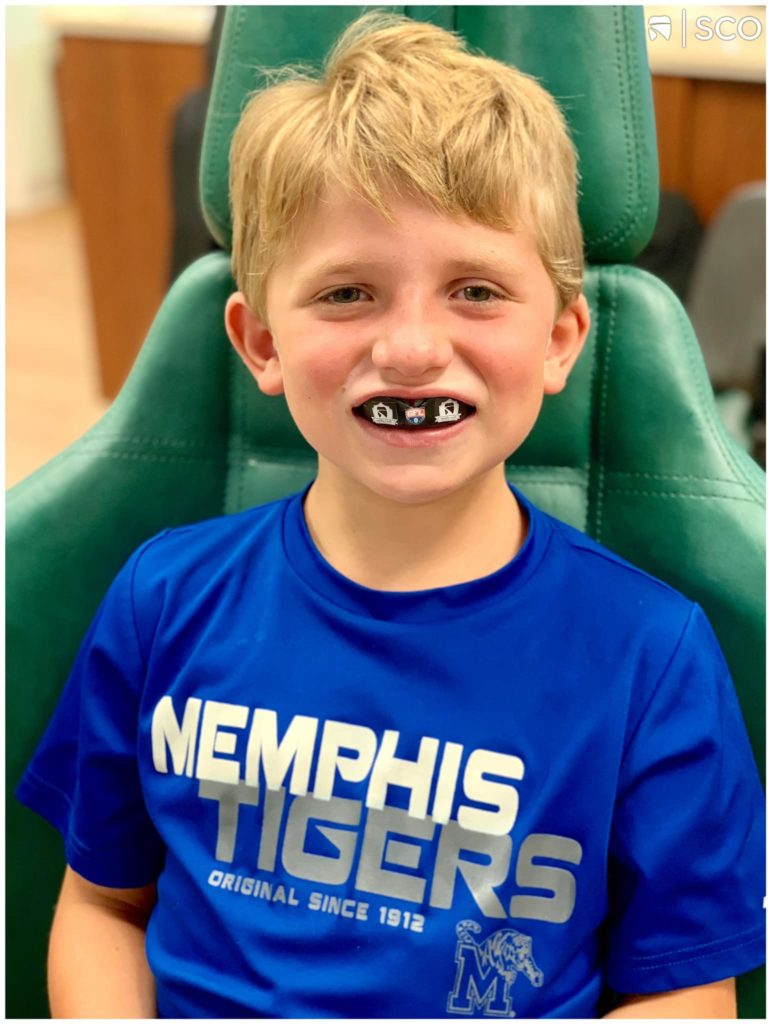Braces And Mouthguards: What You Need To Know
